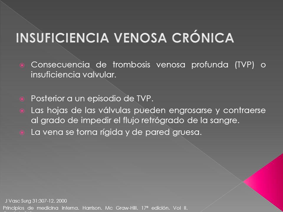 Consecuencia de trombosis venosa profunda (TVP) o insuficiencia valvular. Posterior a un episodio de TVP. Las hojas de las válvulas pueden engrosarse