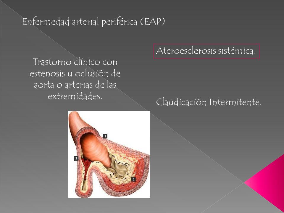 Enfermedad arterial periférica (EAP) Ateroesclerosis sistémica. Trastorno clínico con estenosis u oclusión de aorta o arterias de las extremidades. Cl