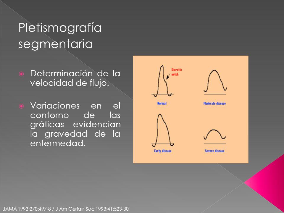 Pletismografía segmentaria Determinación de la velocidad de flujo. Variaciones en el contorno de las gráficas evidencian la gravedad de la enfermedad.