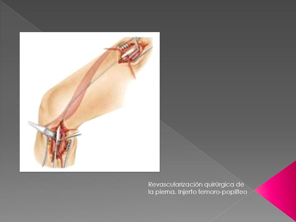 Revascularización quirúrgica de la pierna. Injerto femoro-poplíteo
