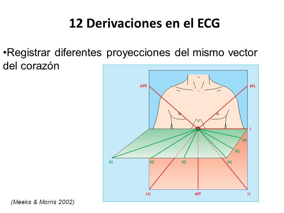 12 Derivaciones en el ECG Registrar diferentes proyecciones del mismo vector del corazón (Meeks & Morris 2002)
