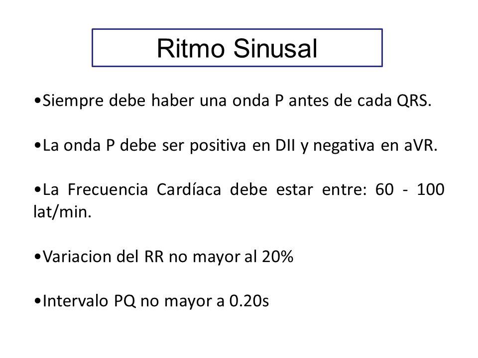 Ritmo Sinusal Siempre debe haber una onda P antes de cada QRS. La onda P debe ser positiva en DII y negativa en aVR. La Frecuencia Cardíaca debe estar
