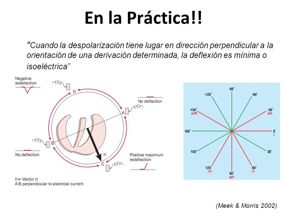 En la Práctica!! Cuando la despolarización tiene lugar en dirección perpendicular a la orientación de una derivación determinada, la deflexión es míni