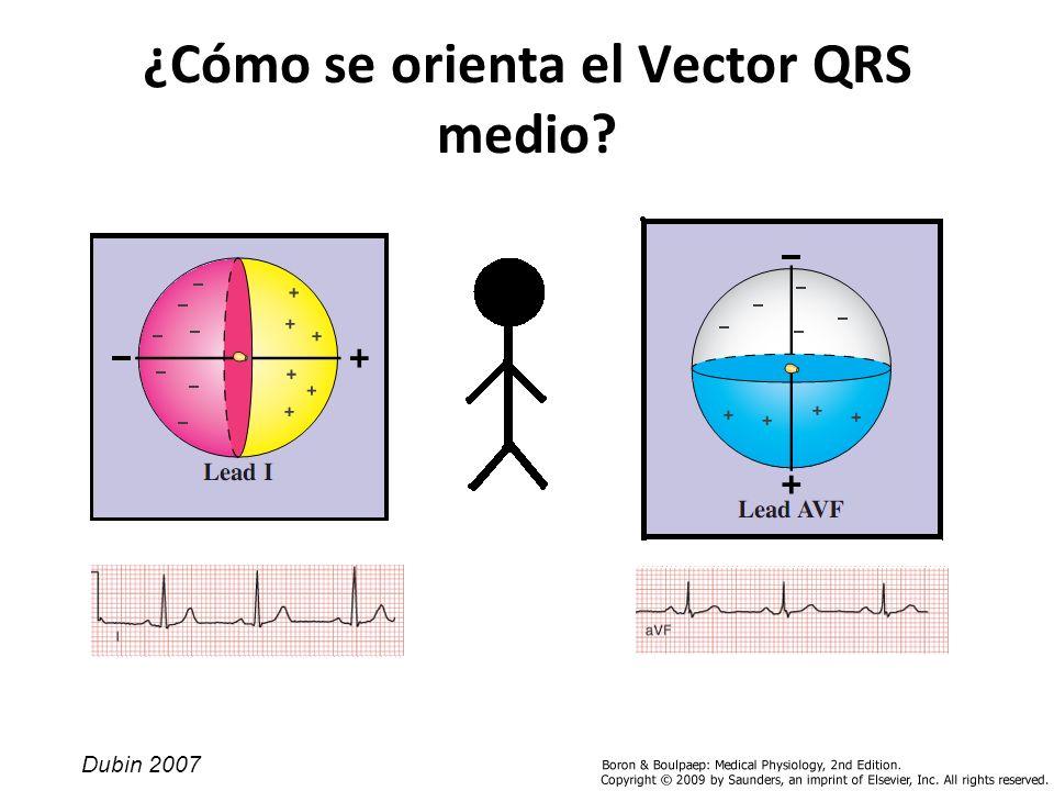 ¿Cómo se orienta el Vector QRS medio? Dubin 2007