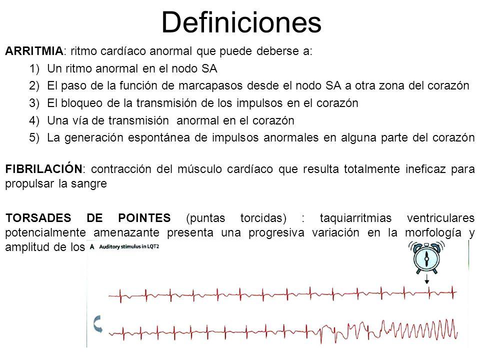 Definiciones ARRITMIA: ritmo cardíaco anormal que puede deberse a: 1)Un ritmo anormal en el nodo SA 2)El paso de la función de marcapasos desde el nod