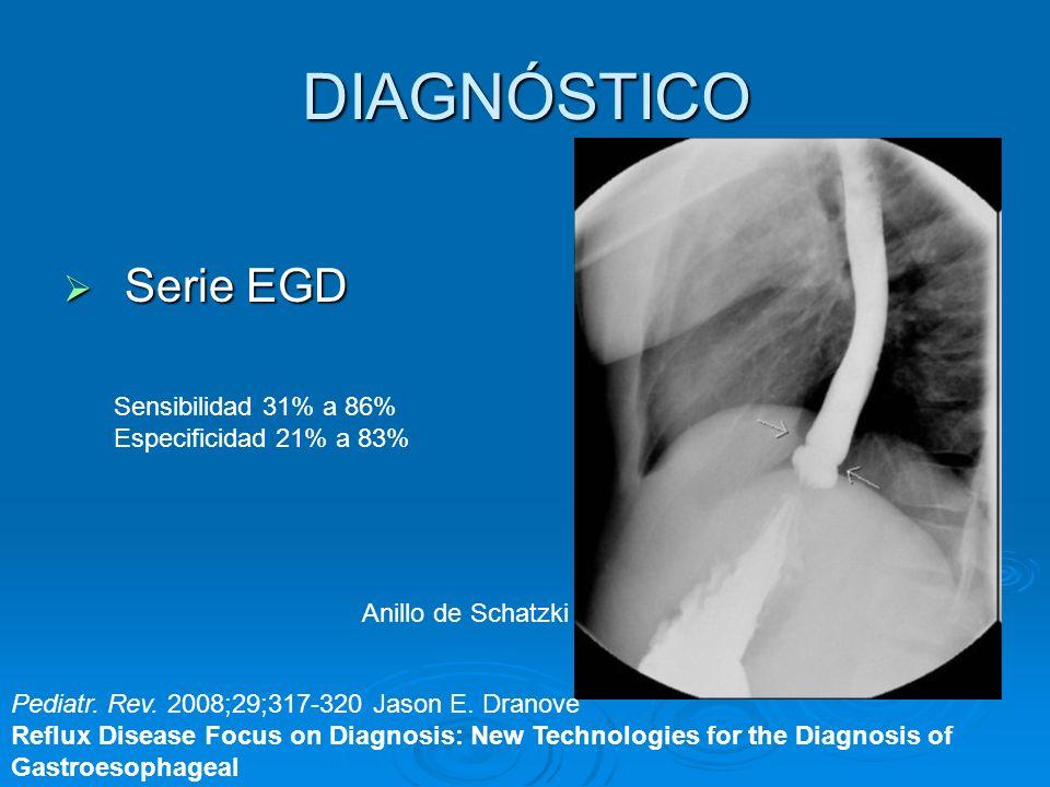 DIAGNÓSTICO Serie EGD Serie EGD Anillo de Schatzki Pediatr. Rev. 2008;29;317-320 Jason E. Dranove Reflux Disease Focus on Diagnosis: New Technologies