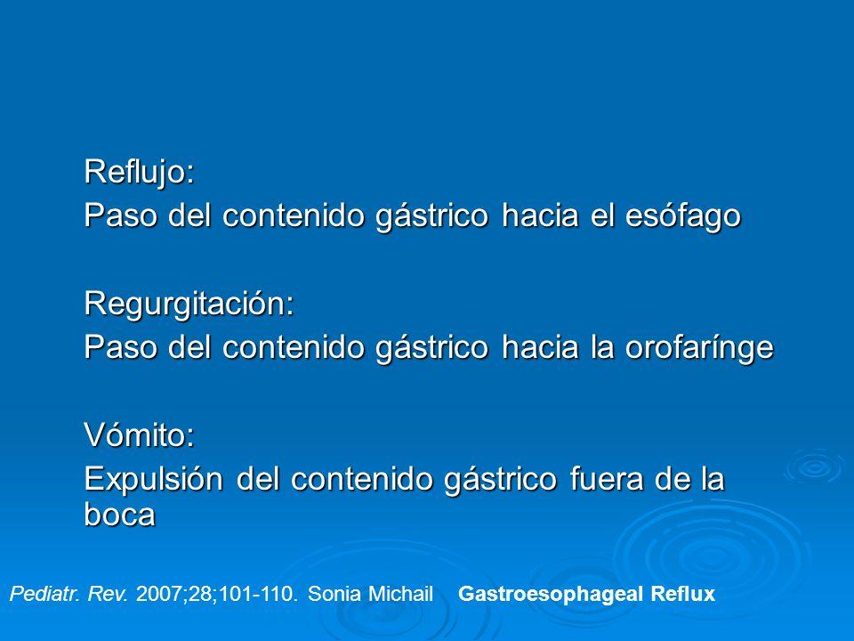 Reflujo: Paso del contenido gástrico hacia el esófago Regurgitación: Paso del contenido gástrico hacia la orofarínge Vómito: Expulsión del contenido g