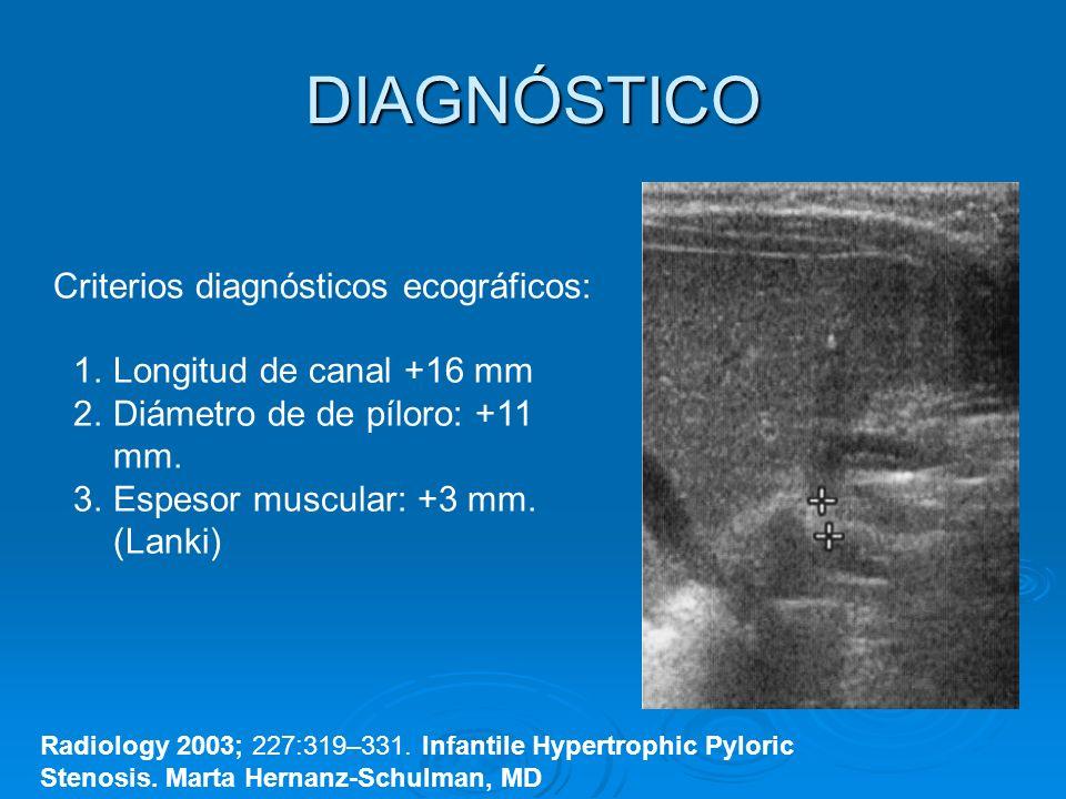 DIAGNÓSTICO Radiology 2003; 227:319–331. Infantile Hypertrophic Pyloric Stenosis. Marta Hernanz-Schulman, MD Criterios diagnósticos ecográficos: 1.Lon