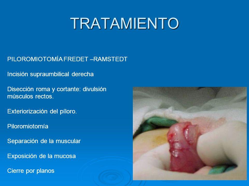 TRATAMIENTO PILOROMIOTOMÍA FREDET –RAMSTEDT Incisión supraumbilical derecha Disección roma y cortante: divulsión músculos rectos. Exteriorización del