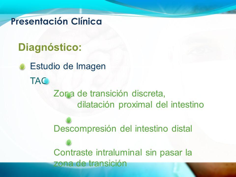 Presentación Clínica Diagnóstico: Estudio de Imagen TAC Zona de transición discreta, dilatación proximal del intestino Descompresión del intestino distal Contraste intraluminal sin pasar la zona de transición