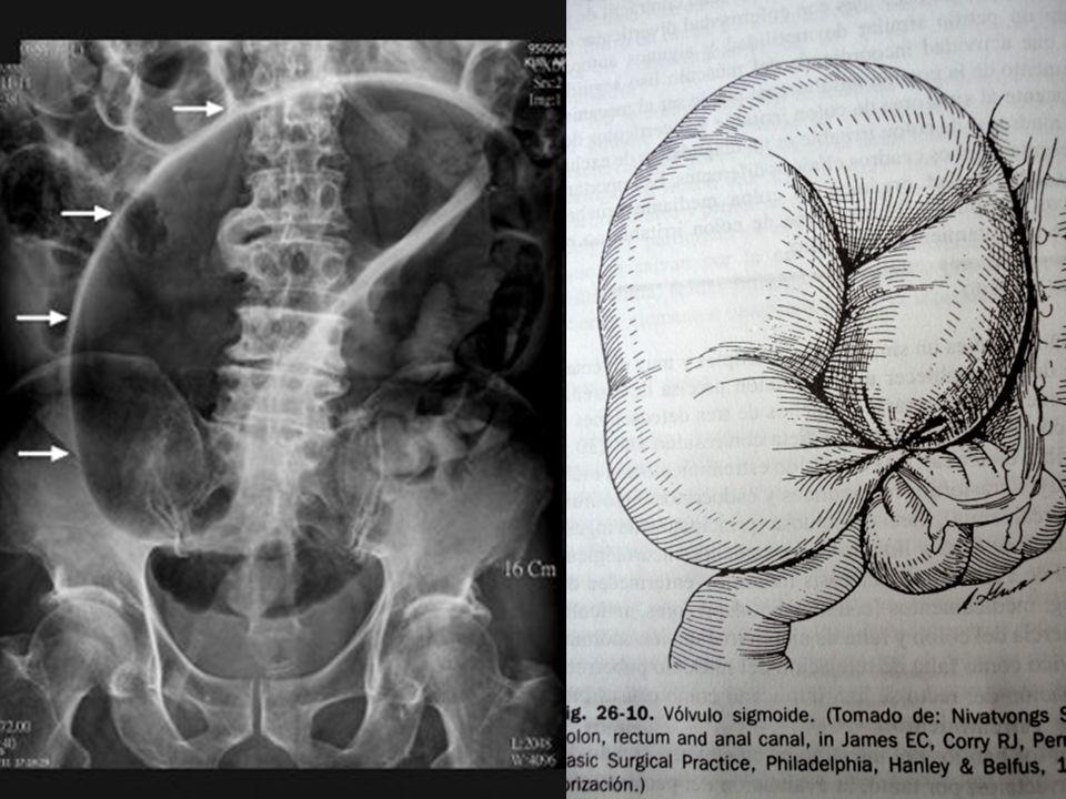 Obstrucción Intestinal Baja Vólvulo Sigmoideo Factores: Estreñimiento crónico Edad (7ma y 8va décadas de la vida) Fármacos Psicótropos (modifican la motilidad intestinal)