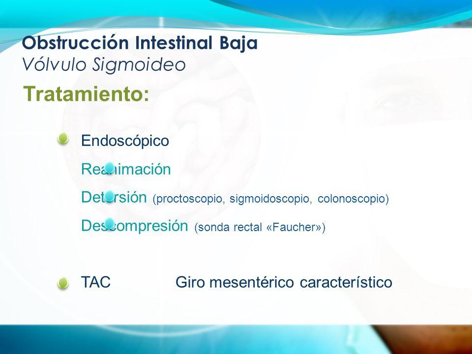 Obstrucción Intestinal Baja Vólvulo Sigmoideo Tratamiento: Endoscópico Reanimación Detorsión (proctoscopio, sigmoidoscopio, colonoscopio) Descompresión (sonda rectal «Faucher») TACGiro mesentérico característico
