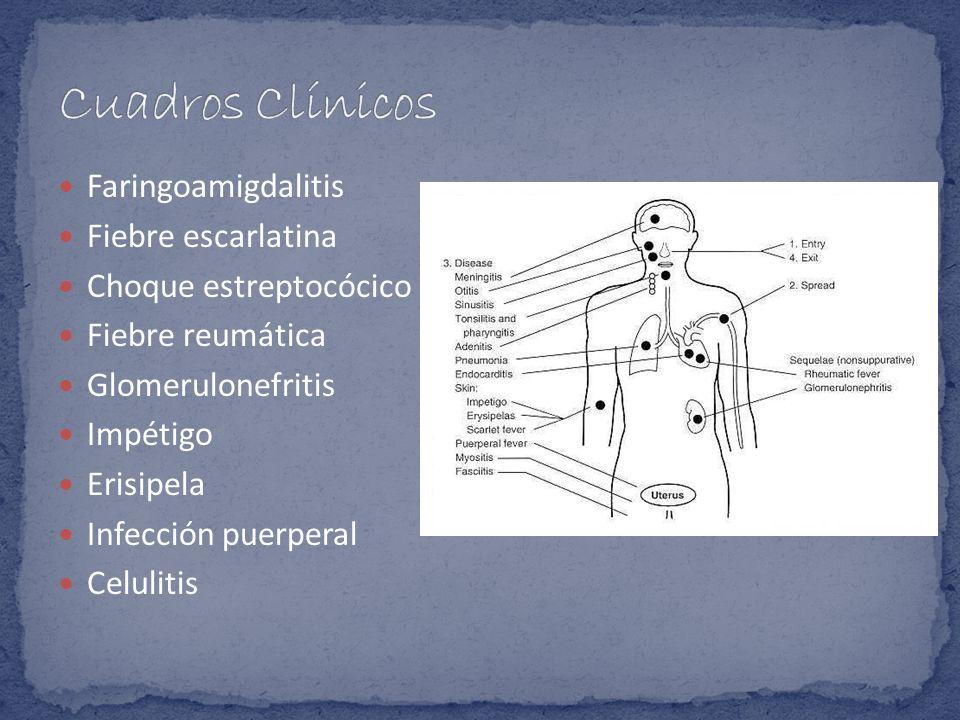 Faringoamigdalitis Fiebre escarlatina Choque estreptocócico Fiebre reumática Glomerulonefritis Impétigo Erisipela Infección puerperal Celulitis