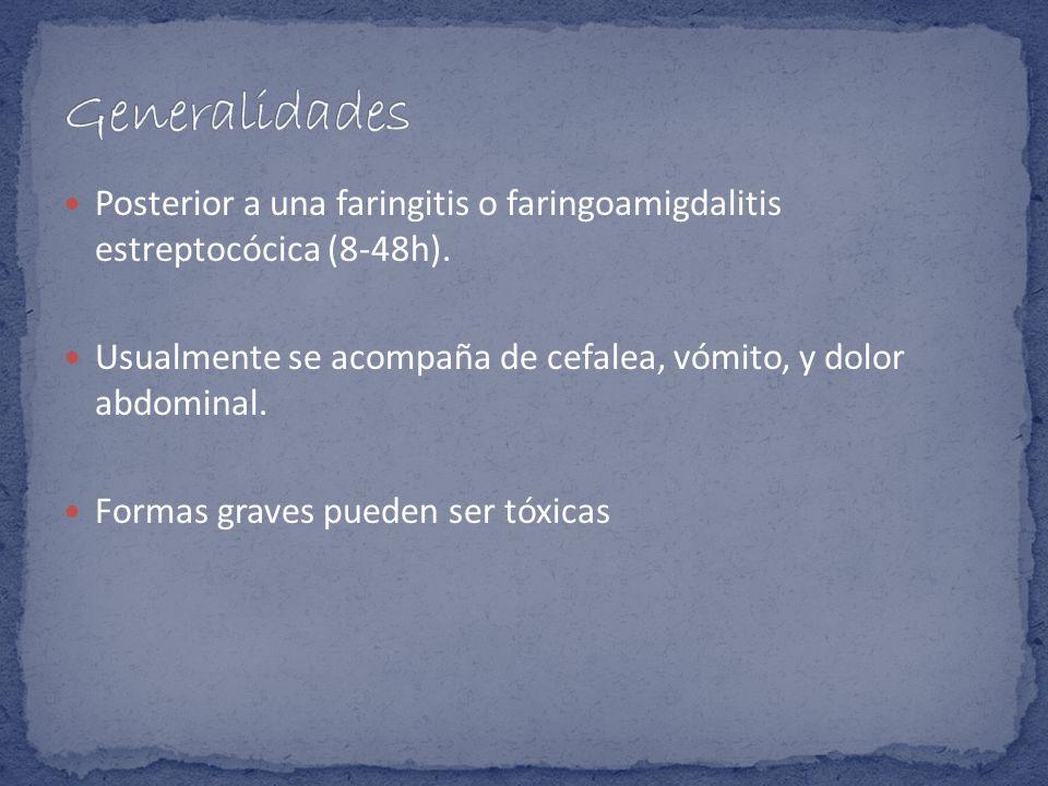 Posterior a una faringitis o faringoamigdalitis estreptocócica (8-48h). Usualmente se acompaña de cefalea, vómito, y dolor abdominal. Formas graves pu