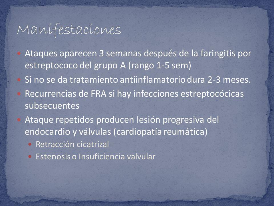 Ataques aparecen 3 semanas después de la faringitis por estreptococo del grupo A (rango 1-5 sem) Si no se da tratamiento antiinflamatorio dura 2-3 mes