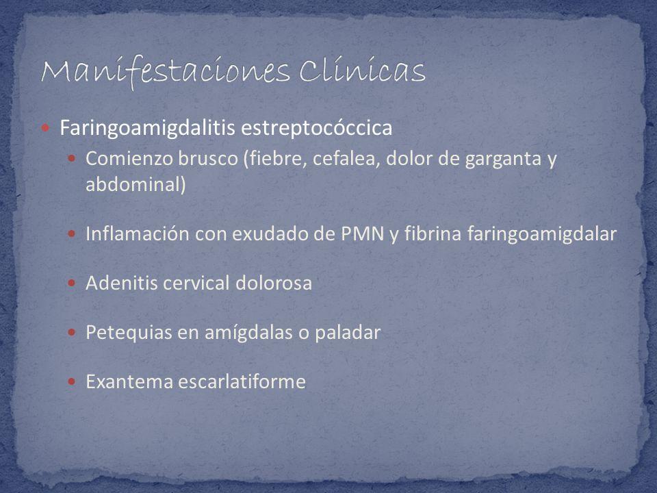 Faringoamigdalitis estreptocóccica Comienzo brusco (fiebre, cefalea, dolor de garganta y abdominal) Inflamación con exudado de PMN y fibrina faringoam