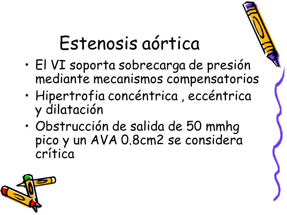 Estenosis Aórtica EKG Radiología