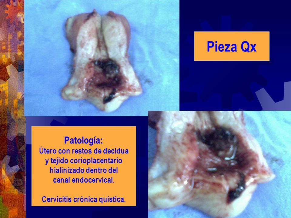 Patología: Útero con restos de decidua y tejido corioplacentario hialinizado dentro del canal endocervical. Cervicitis crónica quística. Pieza Qx