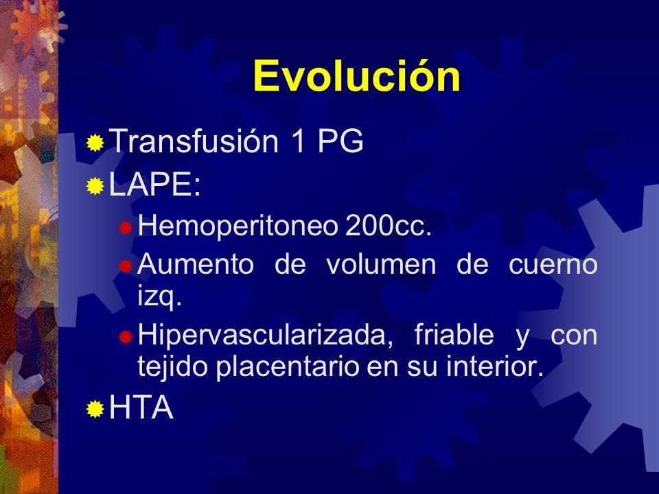 Evolución Transfusión 1 PG LAPE: Hemoperitoneo 200cc. Aumento de volumen de cuerno izq. Hipervascularizada, friable y con tejido placentario en su int