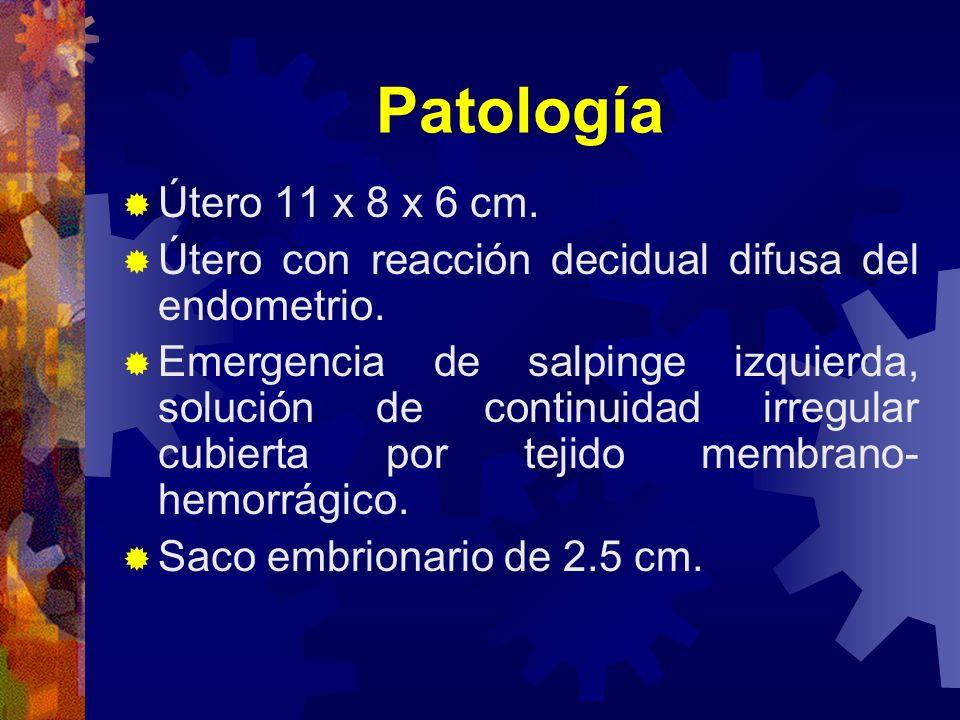 Patología Útero 11 x 8 x 6 cm. Útero con reacción decidual difusa del endometrio. Emergencia de salpinge izquierda, solución de continuidad irregular