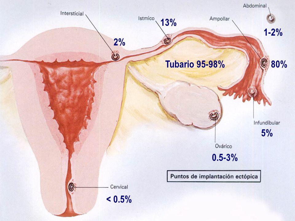 0.5-3% < 0.5% 1-2% 80% 5% 13% 2% Tubario 95-98%