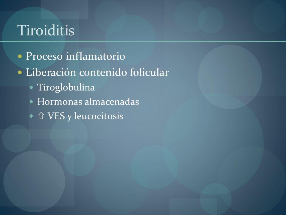 Tiroiditis Proceso inflamatorio Liberación contenido folicular Tiroglobulina Hormonas almacenadas VES y leucocitosis