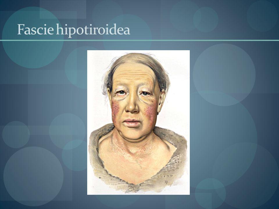Fascie hipotiroidea