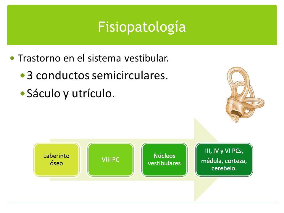 Fisiopatología Trastorno en el sistema vestibular. 3 conductos semicirculares. Sáculo y utrículo. Laberinto óseo VIII PC Núcleos vestibulares III, IV