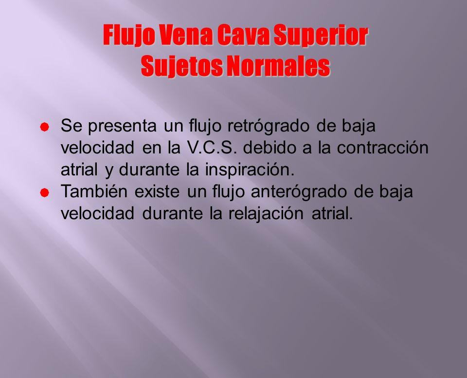 Flujo Vena Cava Superior Sujetos Normales Se presenta un flujo retrógrado de baja velocidad en la V.C.S. debido a la contracción atrial y durante la i