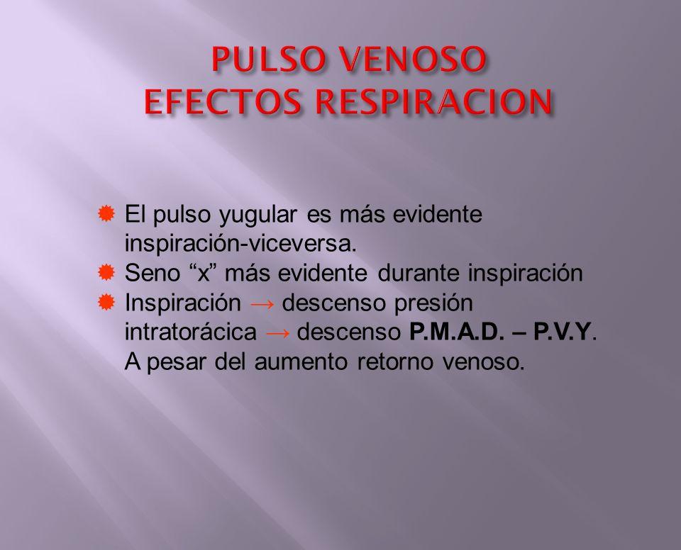 PULSO VENOSO EFECTOS RESPIRACION El pulso yugular es más evidente inspiración-viceversa. Seno x más evidente durante inspiración Inspiración descenso