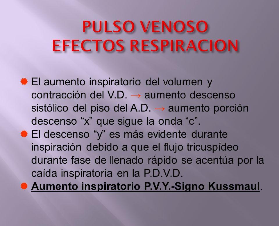 PULSO VENOSO EFECTOS RESPIRACION El aumento inspiratorio del volumen y contracción del V.D. aumento descenso sistólico del piso del A.D. aumento porci