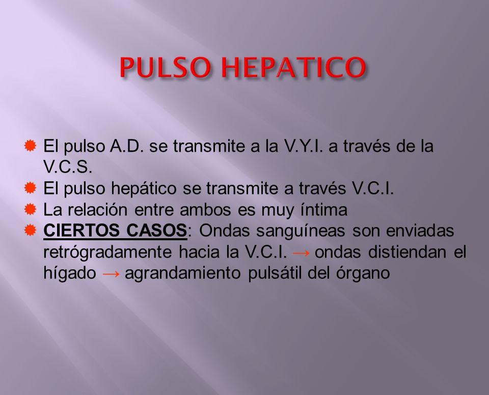 PULSO HEPATICO El pulso A.D. se transmite a la V.Y.I. a través de la V.C.S. El pulso hepático se transmite a través V.C.I. La relación entre ambos es