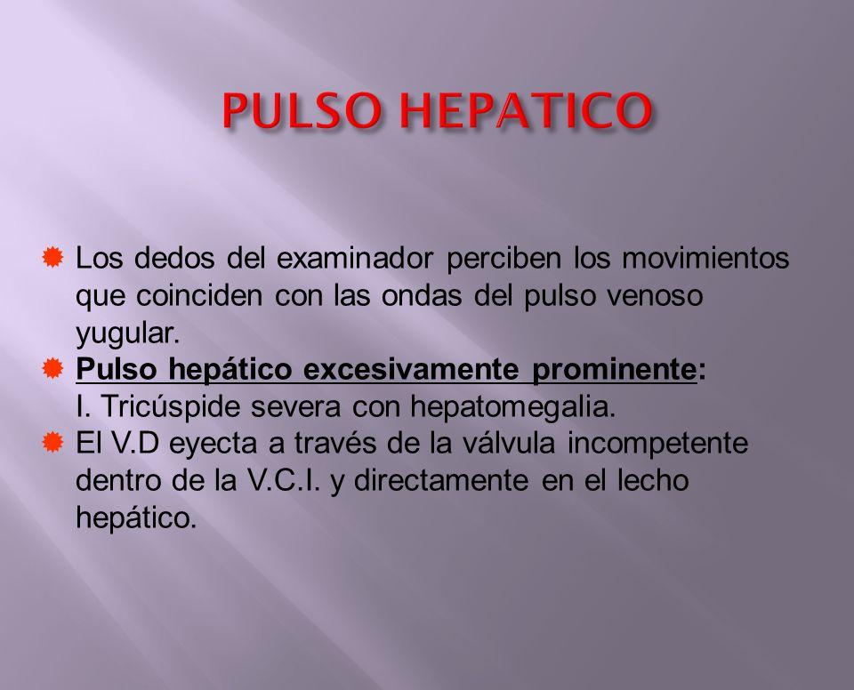 PULSO HEPATICO Los dedos del examinador perciben los movimientos que coinciden con las ondas del pulso venoso yugular. Pulso hepático excesivamente pr