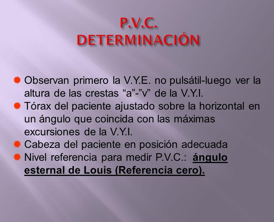 P.V.C. DETERMINACIÓN Observan primero la V.Y.E. no pulsátil-luego ver la altura de las crestas a-v de la V.Y.I. Tórax del paciente ajustado sobre la h