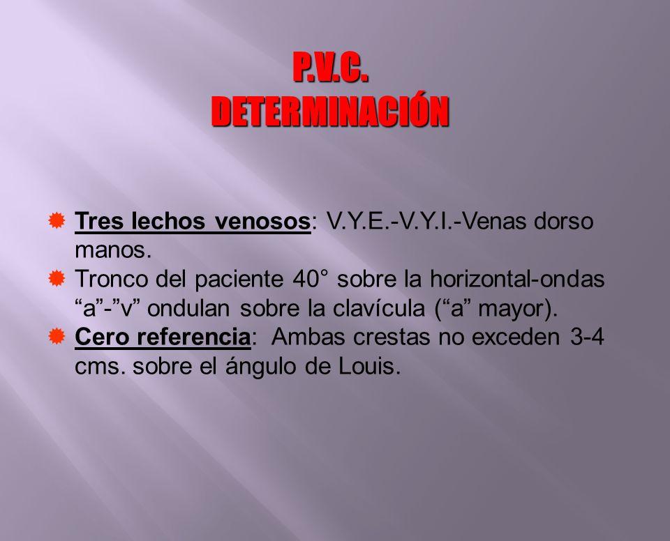 Tres lechos venosos: V.Y.E.-V.Y.I.-Venas dorso manos. Tronco del paciente 40° sobre la horizontal-ondas a-v ondulan sobre la clavícula (a mayor). Cero
