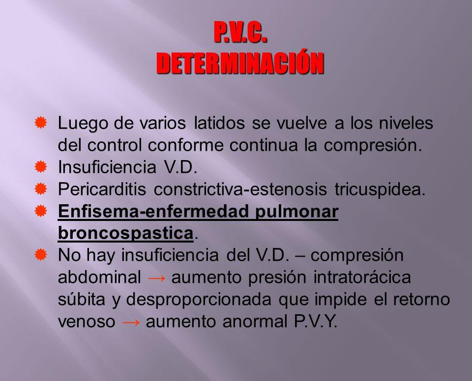 Luego de varios latidos se vuelve a los niveles del control conforme continua la compresión. Insuficiencia V.D. Pericarditis constrictiva-estenosis tr