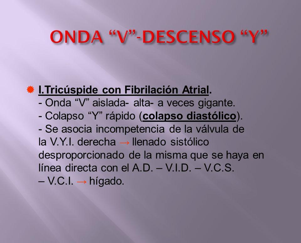 ONDA V-DESCENSO Y I.Tricúspide con Fibrilación Atrial. - Onda V aislada- alta- a veces gigante. - Colapso Y rápido (colapso diastólico). - Se asocia i