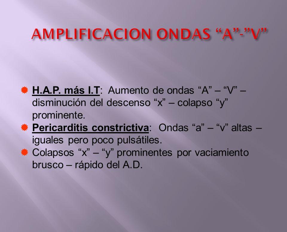 H.A.P. más I.T: Aumento de ondas A – V – disminución del descenso x – colapso y prominente. Pericarditis constrictiva: Ondas a – v altas – iguales per