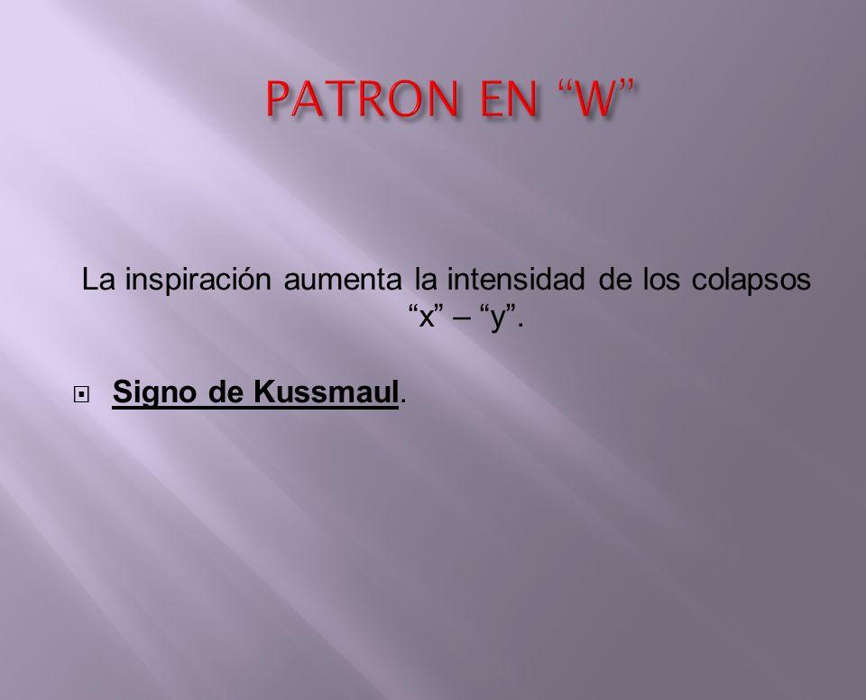 La inspiración aumenta la intensidad de los colapsos x – y. Signo de Kussmaul.