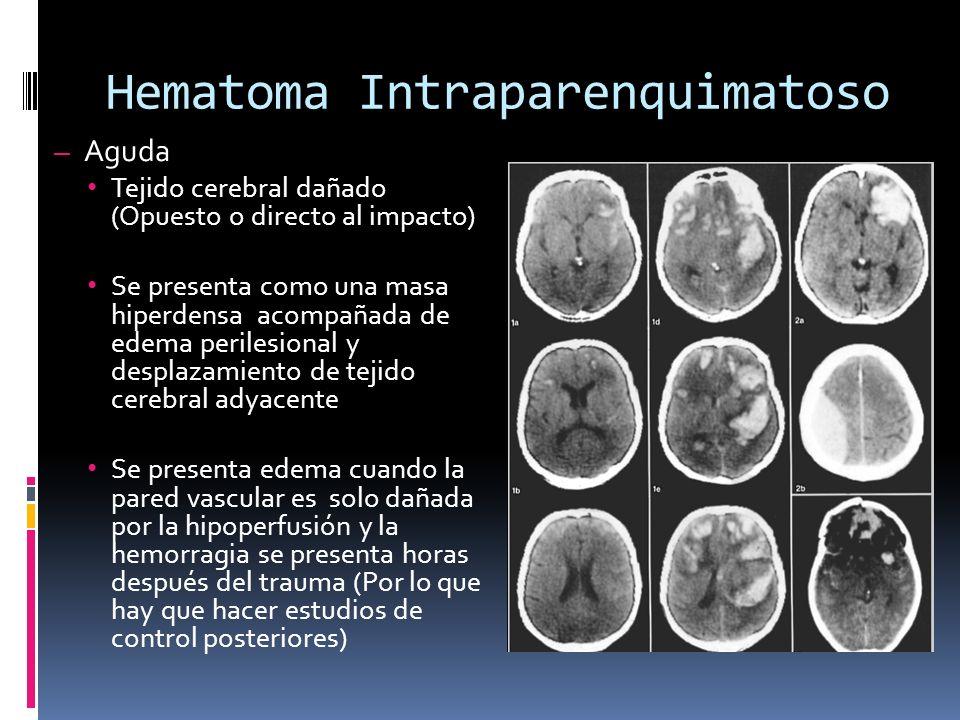 Hematoma Intraparenquimatoso – Aguda Tejido cerebral dañado (Opuesto o directo al impacto) Se presenta como una masa hiperdensa acompañada de edema pe