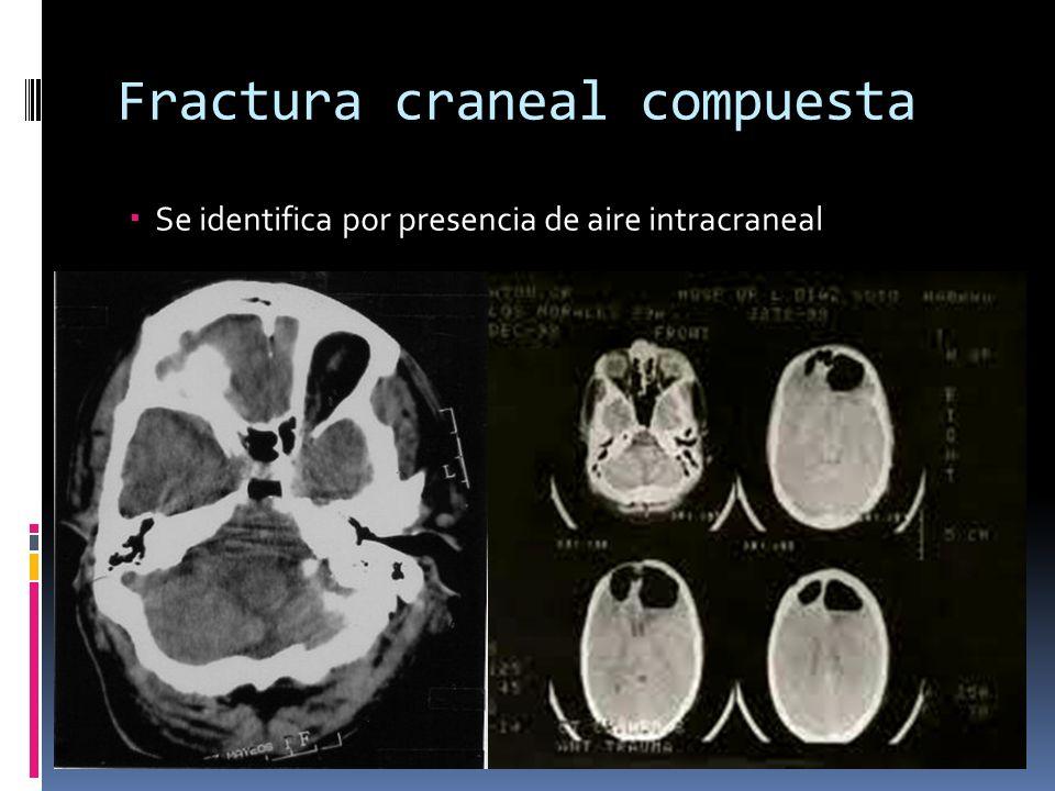 Fractura craneal compuesta Se identifica por presencia de aire intracraneal