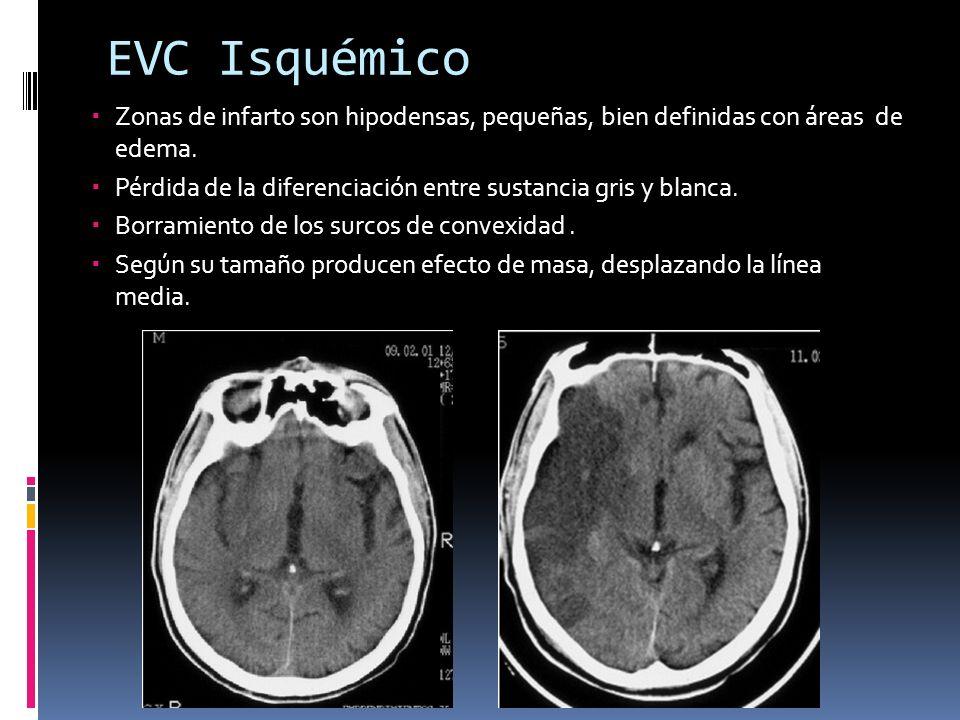 EVC Isquémico Zonas de infarto son hipodensas, pequeñas, bien definidas con áreas de edema. Pérdida de la diferenciación entre sustancia gris y blanca