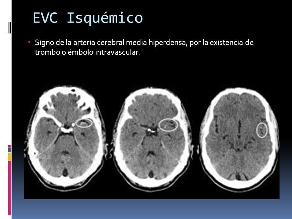 EVC Isquémico Signo de la arteria cerebral media hiperdensa, por la existencia de trombo o émbolo intravascular.