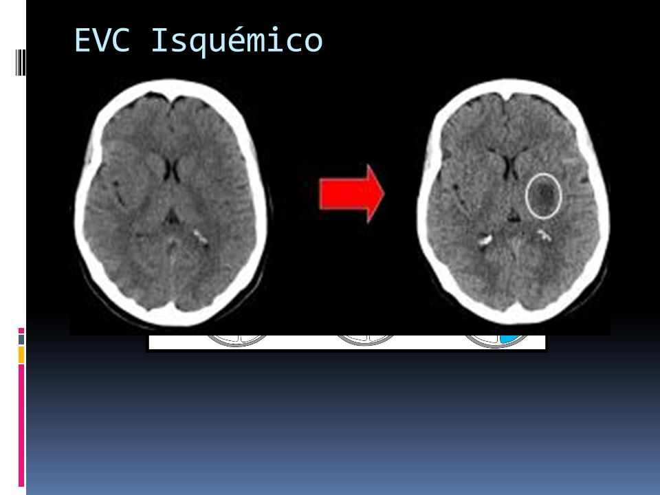 EVC Isquémico