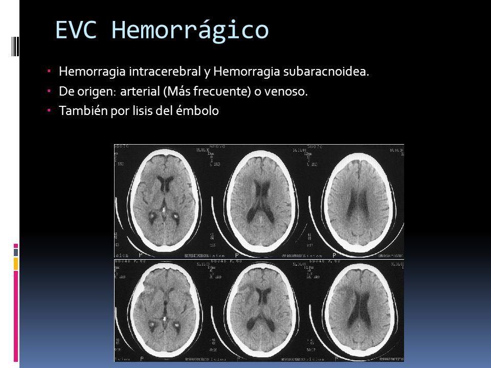 EVC Hemorrágico Hemorragia intracerebral y Hemorragia subaracnoidea. De origen: arterial (Más frecuente) o venoso. También por lisis del émbolo