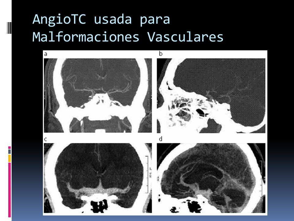AngioTC usada para Malformaciones Vasculares