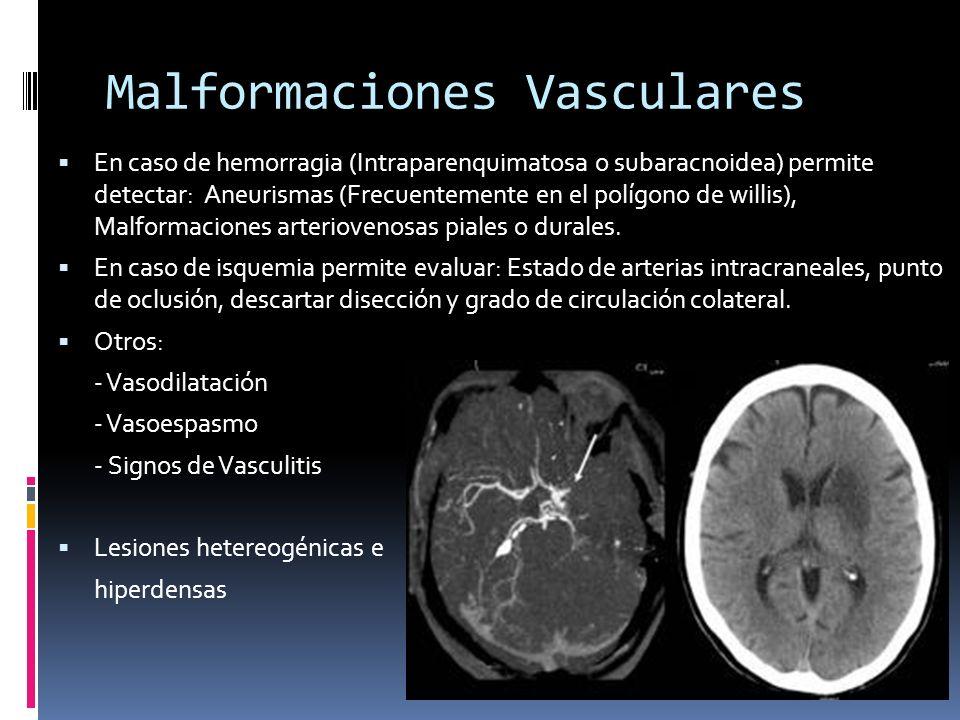 Malformaciones Vasculares En caso de hemorragia (Intraparenquimatosa o subaracnoidea) permite detectar: Aneurismas (Frecuentemente en el polígono de w