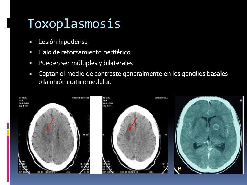 Toxoplasmosis Lesión hipodensa Halo de reforzamiento periférico Pueden ser múltiples y bilaterales Captan el medio de contraste generalmente en los ga