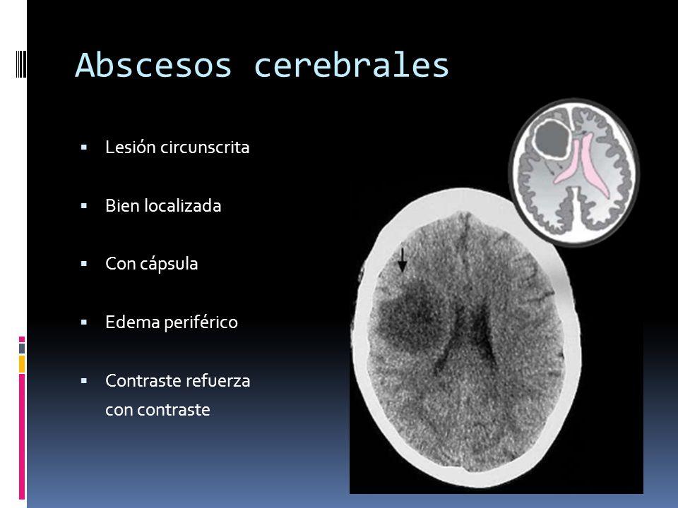 Abscesos cerebrales Lesión circunscrita Bien localizada Con cápsula Edema periférico Contraste refuerza con contraste