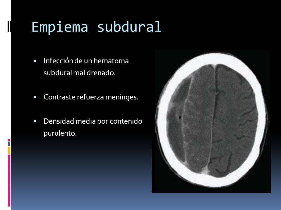 Empiema subdural Infección de un hematoma subdural mal drenado. Contraste refuerza meninges. Densidad media por contenido purulento.